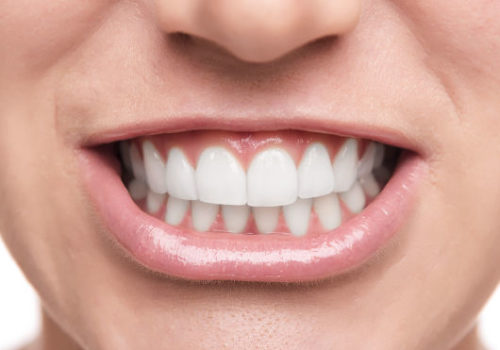 Mouth of a young woman with great healthy teeth. Dental care.